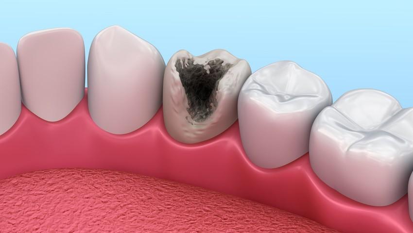dziura w zębie obrazek