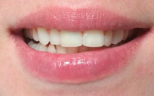 martwy ząb obrazek 2