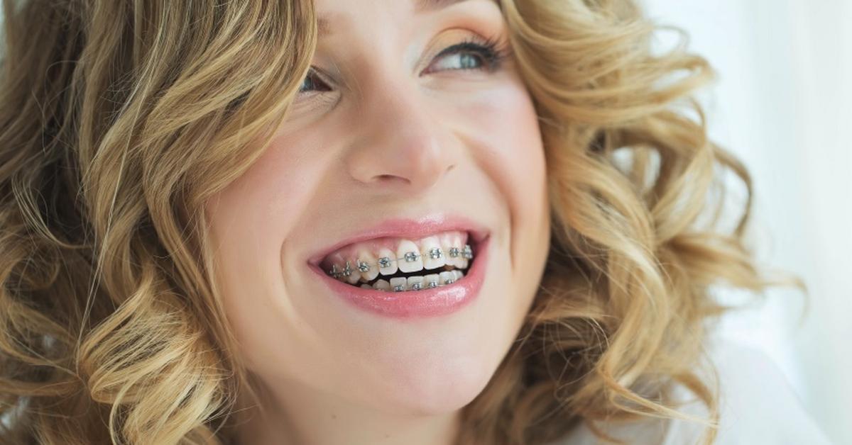 aparat ortodontyczny obraz 3