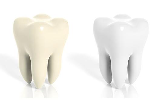 przebarwienia zębów obraz 3