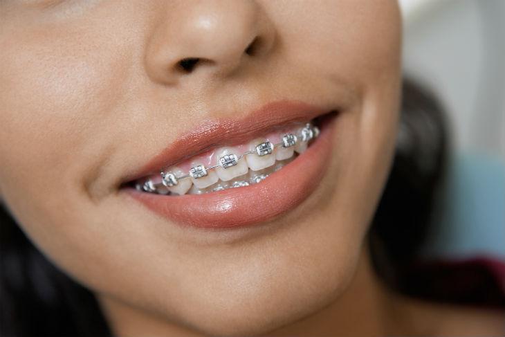 Szczoteczki elektryczne a aparat ortodontyczny obraz 3