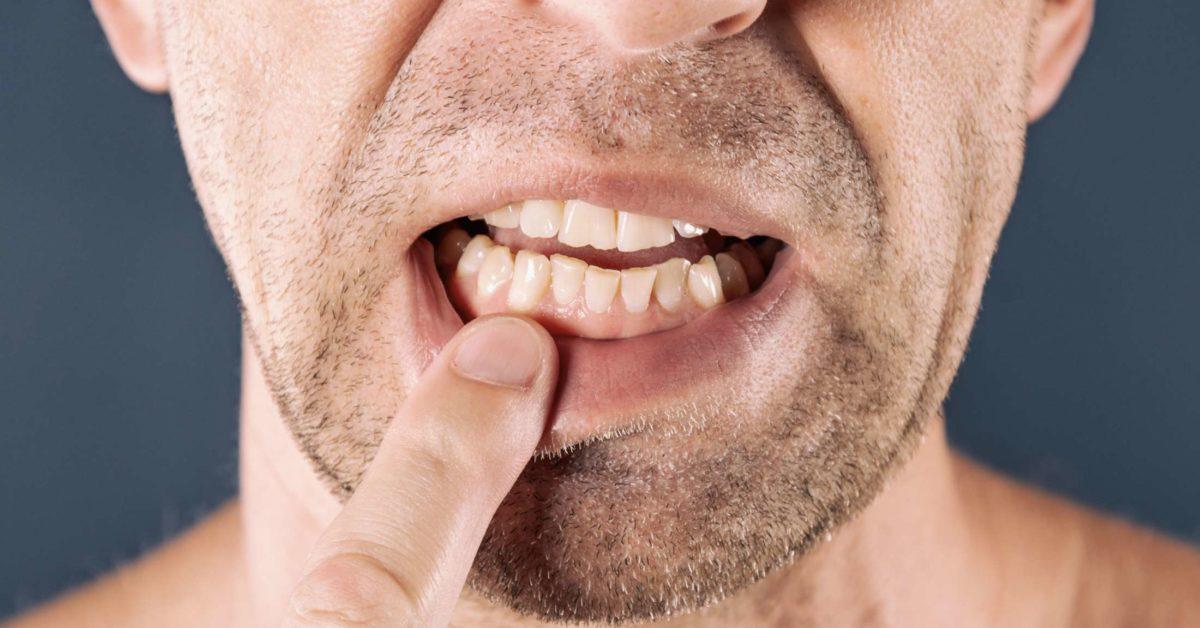 opuchlizna od zębów obraz 2