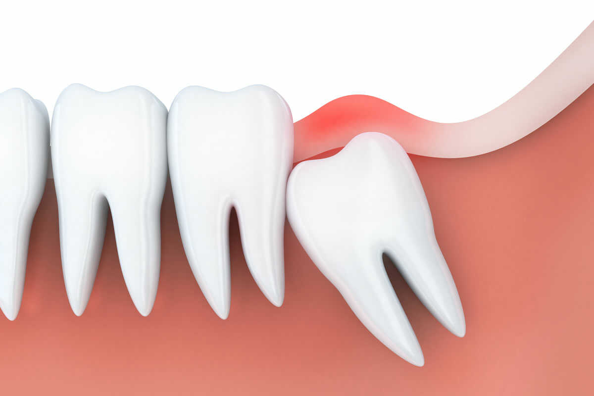 ząb mądrości obraz 1