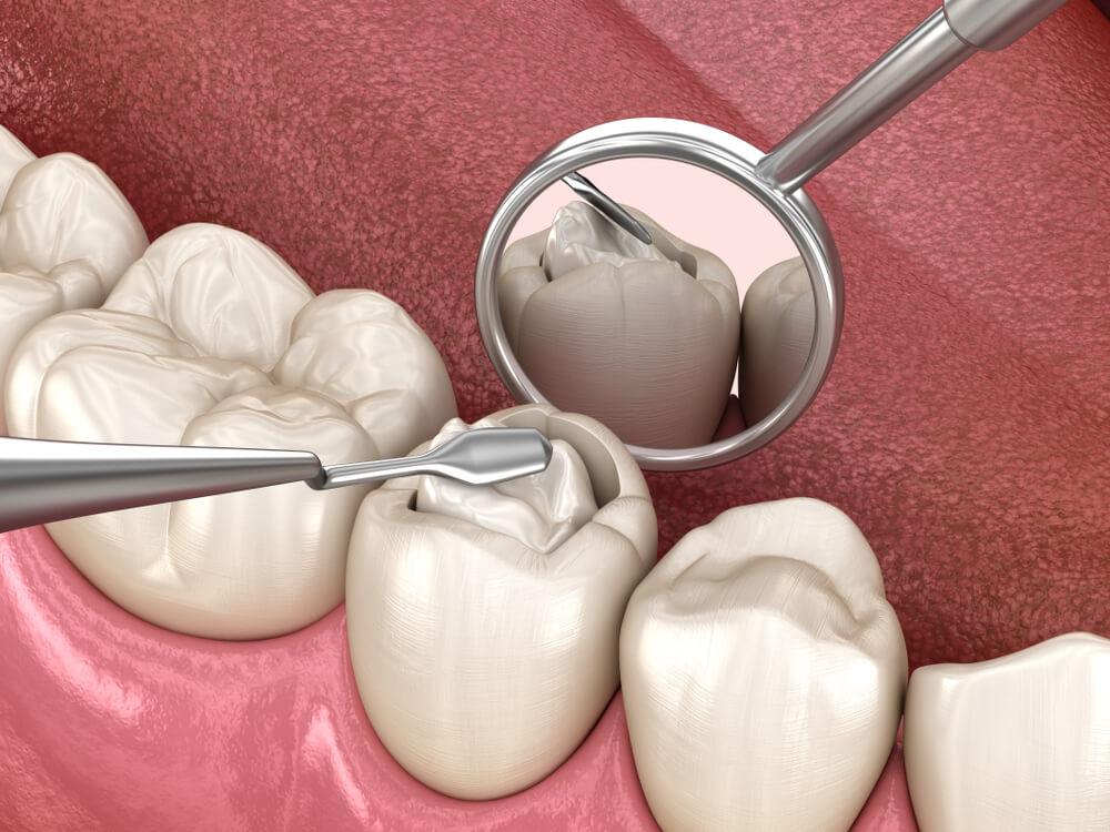 nieleczona próchnica zębów obraz 1