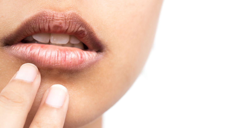 suchość w ustach obraz 1