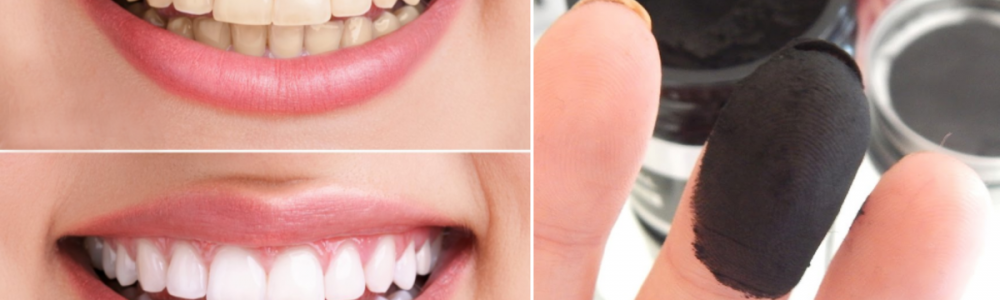 Naturalne wybielanie zębów węglem drzewnym