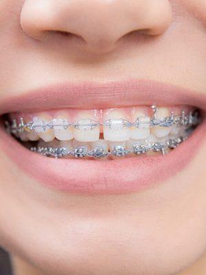 aparat ortodontyczny obraz 1