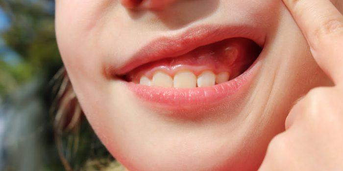 opuchlizna od zębów obraz 3