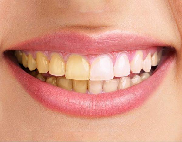 żółte zęby obraz